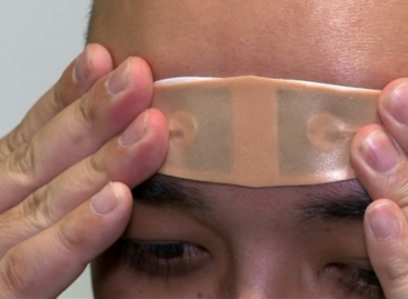 Electric Brain Stimulation Patch Could Treat PTSD
