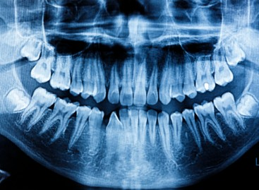 How Bioceramics Could Help Fight Gum Disease