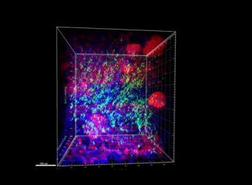 Making Organs Transparent to Improve Nanomedicine