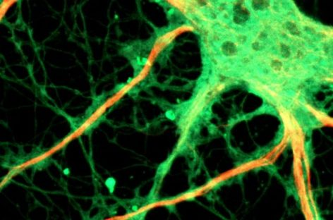 Scientists Want to Grow New Neurons in Old Brains