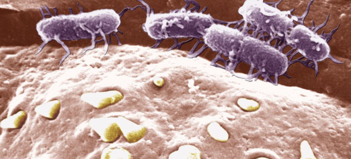 Scientists Turn Salmonella Into 'Cancer-Seeking Missile' To Destroy Brain Tumours