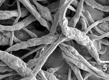 New 'Smart' Fibers Curb Fires in Lithium-Ion Batteries